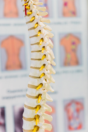 Spine Disc degenerated by osteophyte formation photo