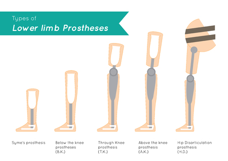 lower limb: Types of Lower Limb Prosthetics infographic vector Illustration
