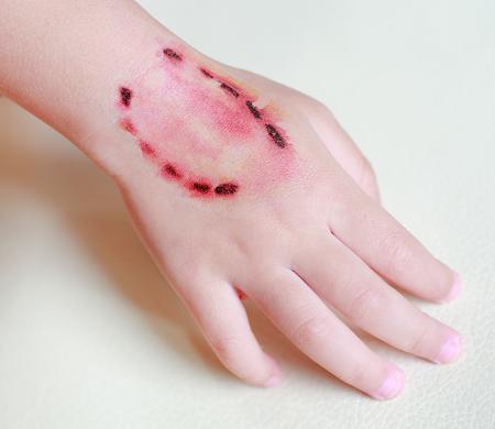 Sticker wond en bloed van een bijten menselijke tanden op kind hand, Verkleed tatoeages, Halloween-concept. Stockfoto