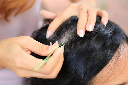 Close up Woman's hand using tweezers to plucking gray hair roots from head. Foto de archivo