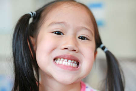 Face of little Asian child girl with a teeth broken and rotten.