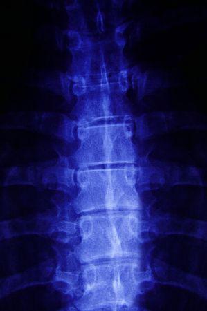 columna vertebral humana: De rayos X de una columna vertebral humana  Foto de archivo