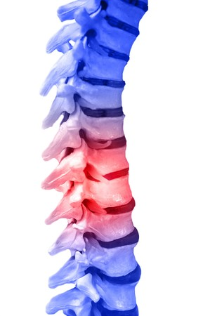 Human Spinal-column model, isolated on white, with red for pain