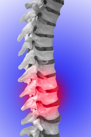 lumbar: Human Spinal-column, showing red for pain Stock Photo