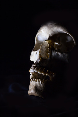 Skull with black background without some teeth