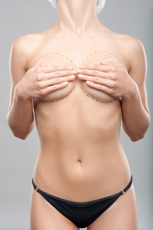 Caucasian woman s abdomen marked with lines for abdominal cosmetic surgery  Plastic surgey concept, isolated on grey