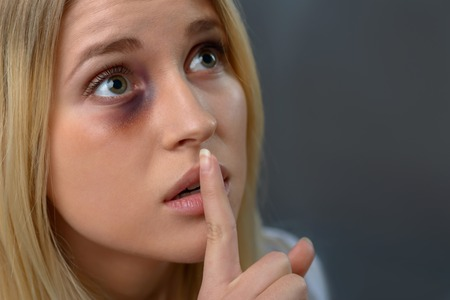 beaten up: hush-hush. Close up of poor beaten young girl holding finger near mouth and keeping silence while looking up Stock Photo