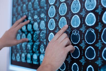 인간 두뇌의 X 레이 이미지가 화이트 보드에 놓여있다. 스톡 콘텐츠