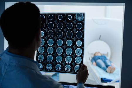 전문 남성 종양 전문의는 MRI 스캔 이미지를보고
