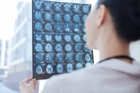 Experienced oncologist examining x ray image at the roentgen room Stock Photo