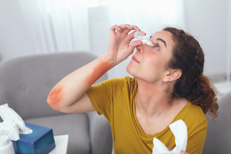 Eye drops. Adolescent sick woman looking up trying to keep her eyes open while performing self help Stock Photo - 102002396