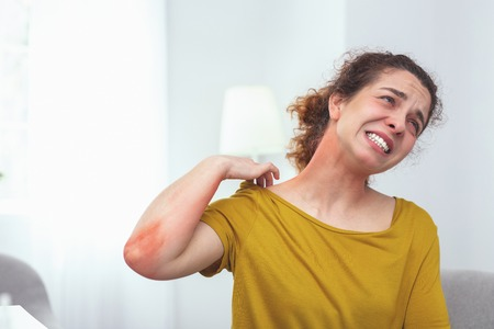 Painful sunburn. Adolescent lady tourist experiencing pain and discomfort caused by a painful sunburn on her neck