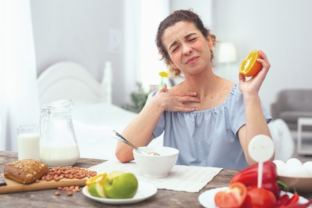 Citrus allergy. Young beautiful woman looking sore and getting an allergic rash while eating an orange during her dinner