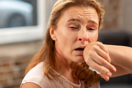 Nose running. Blond-haired sick woman having running nose and cough suffering from allergy