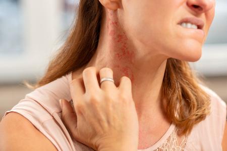 Anillo en el dedo. Mujer rubia con anillo en el dedo con erupción en el cuello debido a alergia