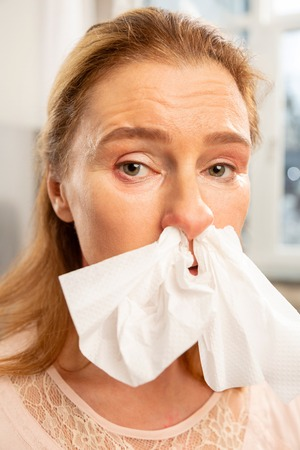 Napkin in nose. Green-eyed woman with allergy having napkin in her nose while sneezing all day Stock fotó