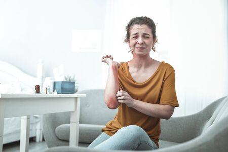Arañazos en brazo. Mujer joven sentada en el sofá y sintiendo dolor por rasguños y enrojecimiento en el brazo