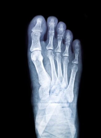 x-ray of foot on black background photo