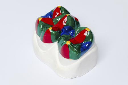 molares: modelo de yeso de dos dientes molares, pintado Foto de archivo