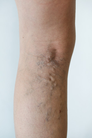 varicose veins: Varicose veins on a leg Stock Photo