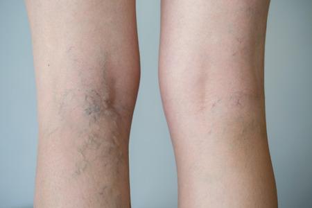 Varicose veins on a leg Stockfoto