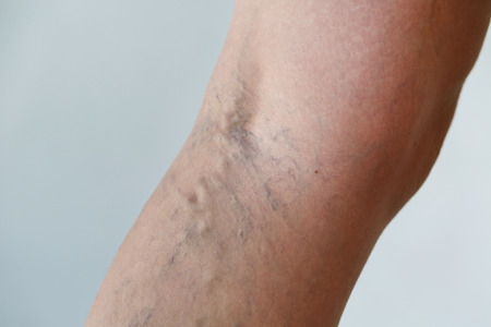 ulceration: Varicose veins on a leg Stock Photo