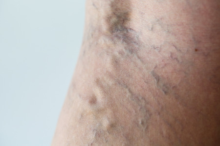 ulceration: Varicose veins on a leg, close-up