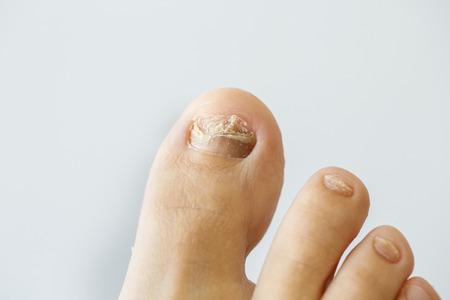 foot fungus: Nail fungus on a toenail Stock Photo