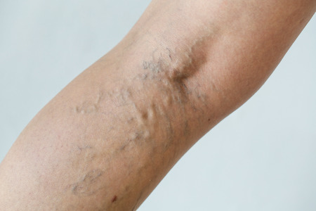 Varicose veins on a leg Stock Photo