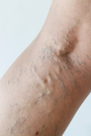 varicose veins: Varicose veins on a leg, close-up