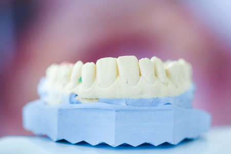 prosthodontics: Dental plaster mold with open mouth picture in the background
