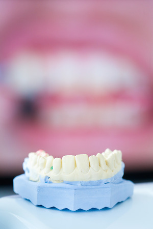 crooked teeth: Dental gypsum mold with crooked teeth picture in the background Stock Photo