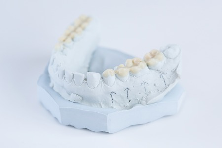 prosthodontics: Dental plaster mold with ceramic crowns Stock Photo