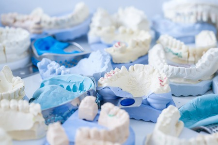 Denture and implant production: variety of dental plaster moulds and imprints with metal stock trays