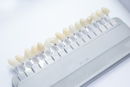 denture: Denture and implant production: false teeth color samples