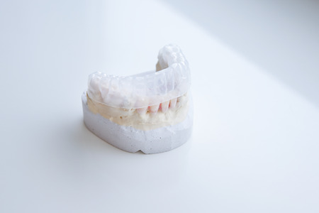 rapid prototyping: Invisalign, invisible plastic teeth aligner on a dental plaster mold Stock Photo