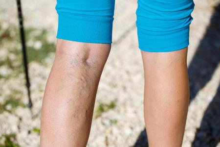 足の静脈瘤