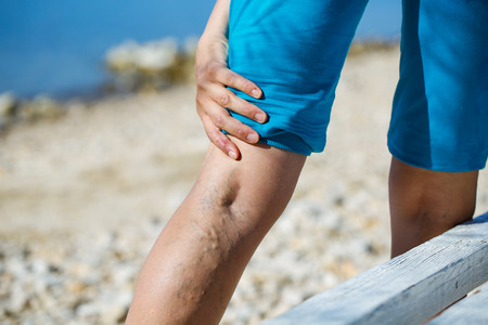 varicose veins: Woman touching painful varicose veins on a leg Stock Photo