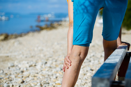 ulceration: Woman touching painful varicose veins on a leg Stock Photo