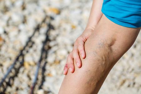 legs: Mujer tocando venas varicosas dolorosas en una pierna