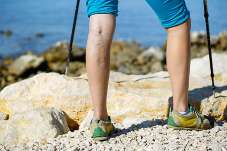 Woman with varicose veins on a leg walking using trekking poles Stock Photo