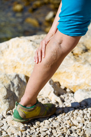 varicose: Woman touching painful varicose veins on a leg Stock Photo