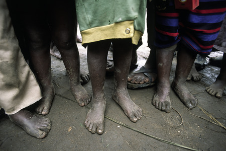 Poor African children waiting for food barefoot
