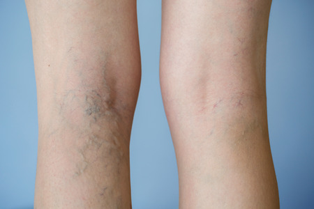 spiders: Varicose veins on a leg Stock Photo