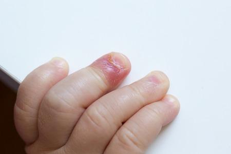 pus: Paronichia, dito gonfio con letto unghia infiammazione a causa di infezione batterica su una mano bambini.