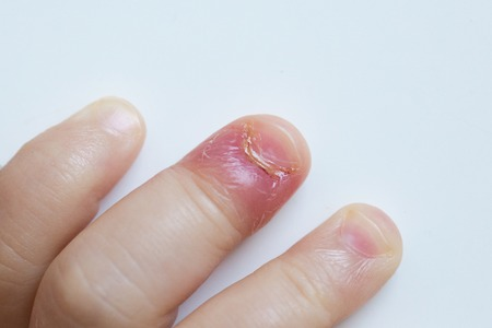 herpes: Paronychia, swollen finger with fingernail bed inflammation due to bacterial infection on a toddlers hand.