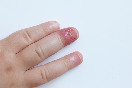 fingernail: Paronychia, swollen finger with fingernail bed inflammation due to bacterial infection on a toddlers hand.