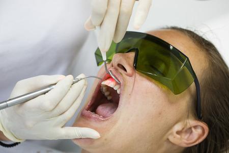 Dentiste en utilisant une diode laser dentaire moderne pour soins parodontaux. Patient portant des lunettes de protection, la prévention des dommages à la vue. La parodontite, l'hygiène dentaire, les procédures de prévention concept. Banque d'images