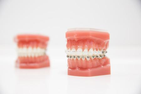 接続されているワイヤ ブレースを有する人間の顎のモデル。歯科・矯正歯科オフィス プレゼンテーション ツールは、白い背景で隔離。