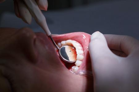 cosmeticos: Paciente en oficina de los dentistas, consiguiendo sus dientes blancos espacios interdentales examinaron con espejo de mano para el sarro y la placa. La higiene dental, procedimientos dolorosos y concepto de la prevención.